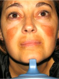 Laser Pigmentation Removal Results