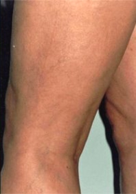 Varicose and Spider Vein Removal Results